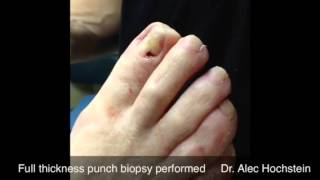 Nail bed biopsy procedure of pigmented lesion