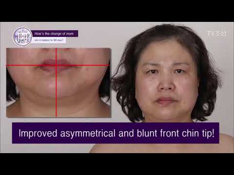 Mrs. Yeonjeong lee's rejuvenation at Faceline plastic surgery clinic!