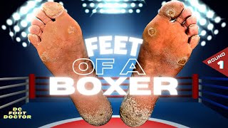 Feet of a Boxer: Knocking Out Painful Calluses, Round 1: Toes & Forefoot
