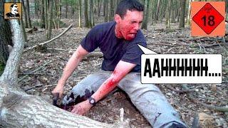 """""""Survival Mattin"""" wird vom Baum erschlagen, schneidet sich das Bein ab und überlebt nur knapp."""