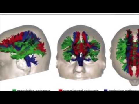 Brain Injury & Diffusion Tensor Imaging  -DTI