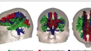 Brain Injury & Diffusion Tensor Imaging  -DTI