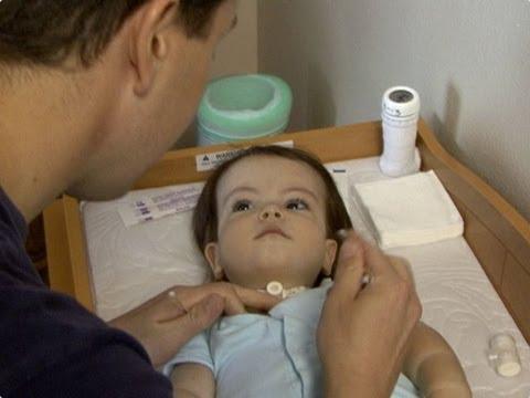 Trach Home Care Pediatrics