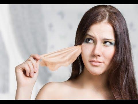 hqdefault - Cure Zits Under Skin