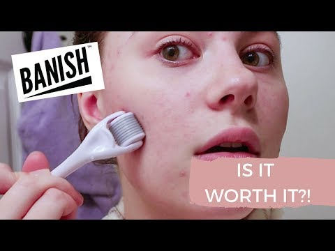 I TRIED BANISH ACNE SCARS FOR 1 MONTH  |  IS IT WORTH IT?