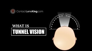What's Tunnel Vision Symptoms and Loss of Peripheral Vision