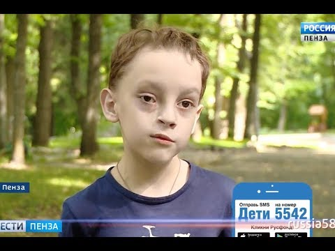Андрей Кукушкин, 6 лет, скрытая расщелина лица, рубцовая деформация губы