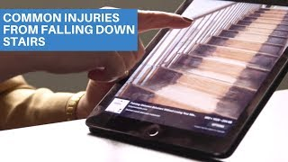 Common Injuries From Falling Down Stairs