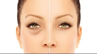 How to Get Rid of Puffy Eyes from Crying We all hate those puffy re...