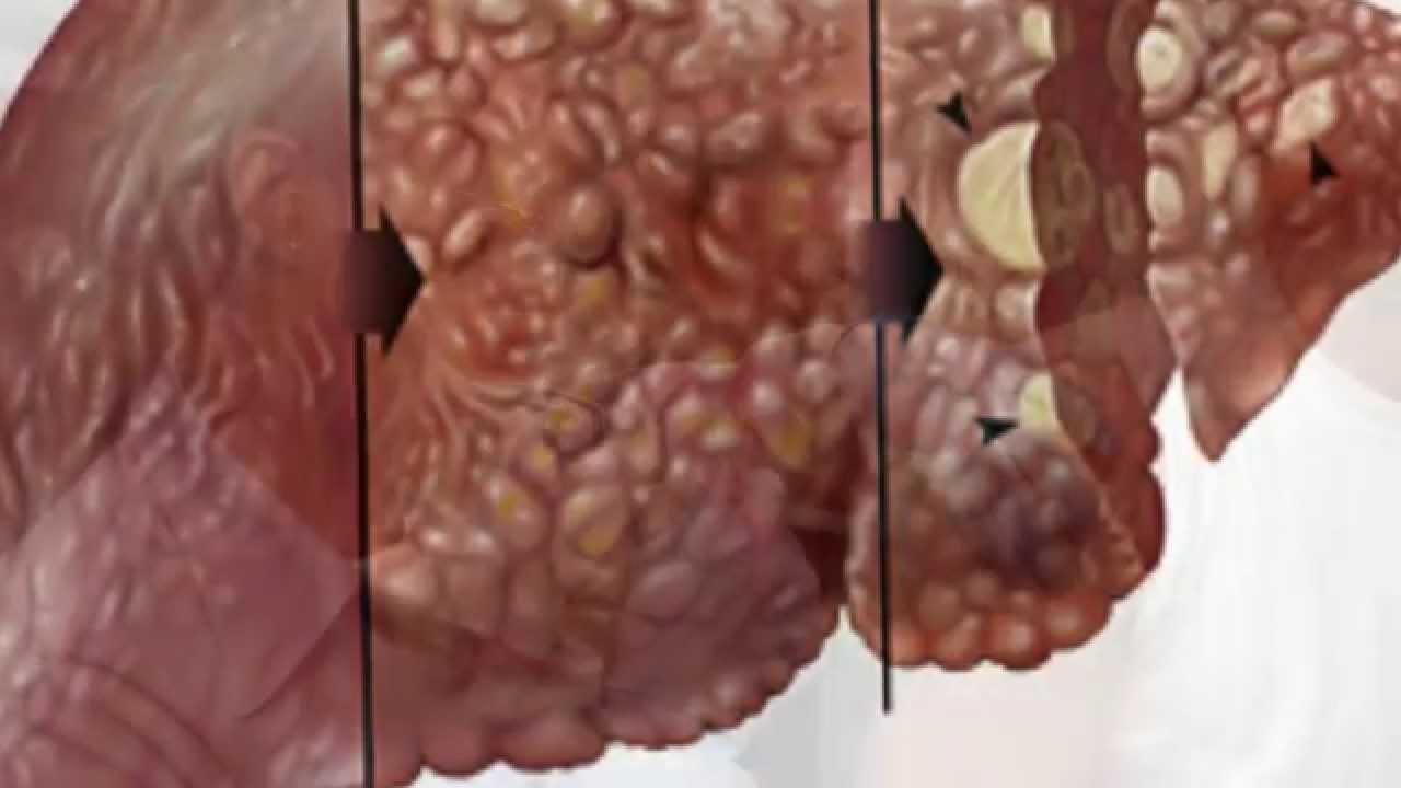 ¿Cómo se contagia la hepatitis? | Vias de transmisión de