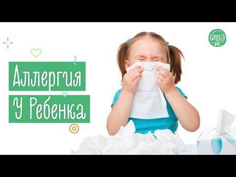 Аллергия У Ребенка | Что Делать Родителям? Family Is...