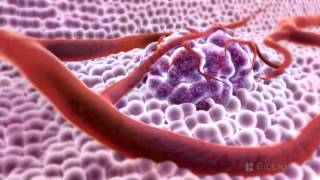 3D Medical Animation - What is Cancer