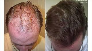 The Forhair Clinic : Hair Surgery in Atlanta, GA