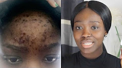 HOW TO : CLEAR ACNE ON A BUDGET!!!(Real Life, Quick Results)