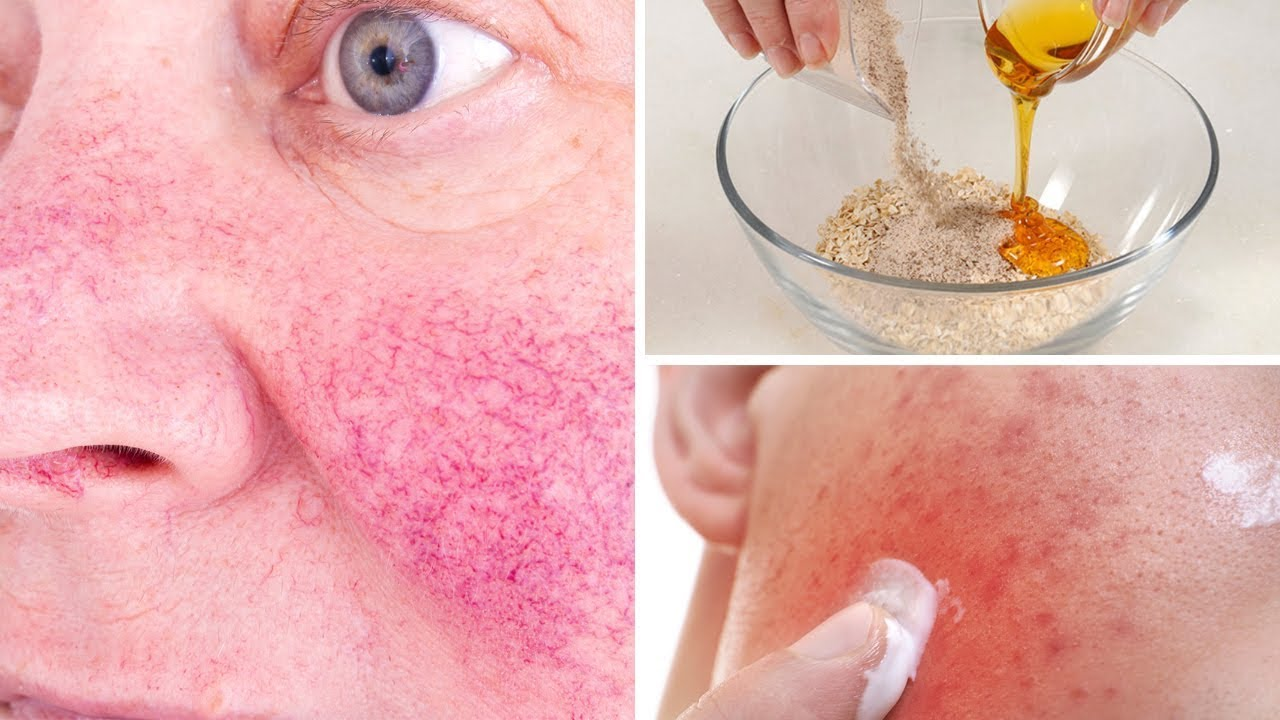 5 Natural Remedies To Get Rid Of Rosacea (Skin Redness)