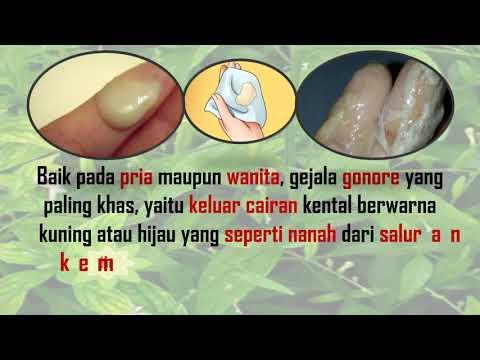obat-alami-sembuhkan-kelamin-keluar-cairan-bening-seperti-nanah-penyakit-kelamin-menular