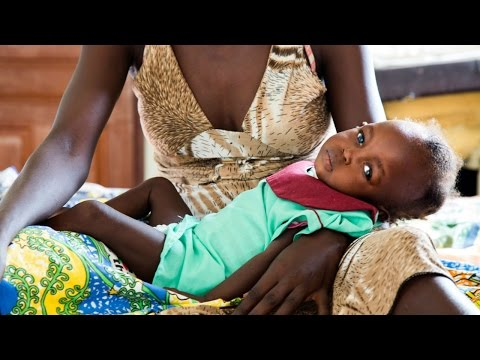 Urgent action necessary for 5.5 million people starving in South Sudan HD
