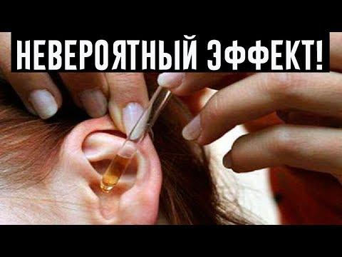 2 капли в уши, и слух улучшается до 97 {f0e8a975ad927a7af6506c4e8287bc8219596d8e57283ff06514f7fb21fe8e74}! Даже старикам от 80 до 90 помогает это природное средство!