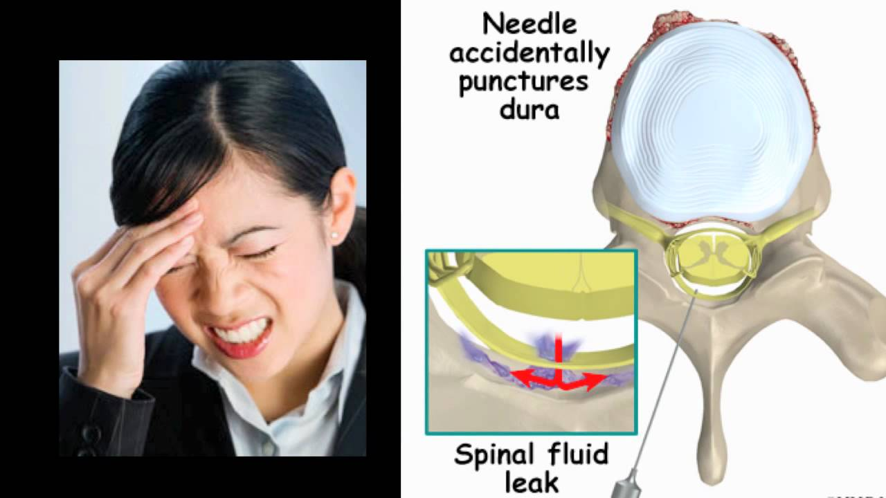 how to get rid of a spinal headache