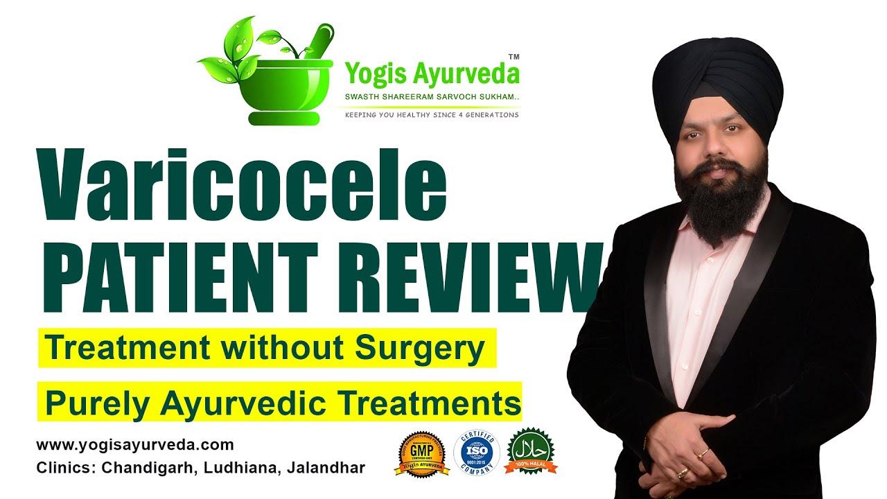 ayurveda cu recenzii varicose recenzii varicoză puternică și naștere