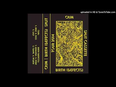 Birth (Defects) - Demands