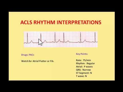 ACLS EKG Rhythms 2016 - Interpretations And Managements By NIK NIKAM MD