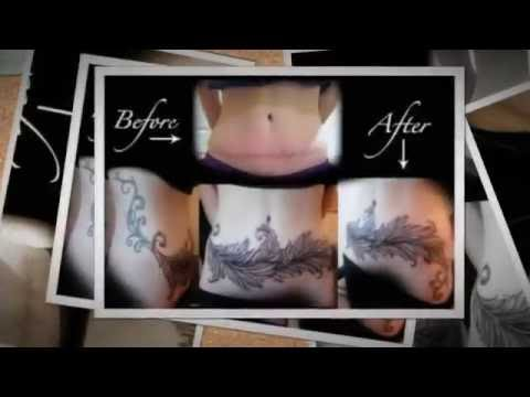 tattoos over stretch marks - YouTube