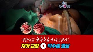 [강북구치과] 치아교정+턱수술. 예쁜얼굴! 양악수술이 …