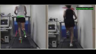 Video Gait Running Analysis: Alignment Issues, Rear View