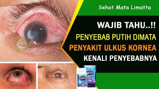 Kuliah Diagnostic and Treatment Approach for Corneal Ulcer - Dr. dr. Lukman Edwar, SpM (K) 24 Agustu.