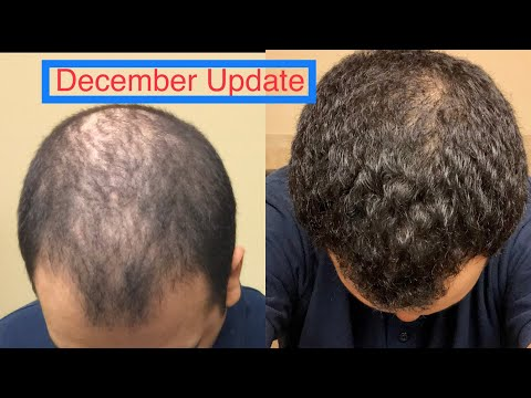 """""""For Hims"""" Review Update (Hairloss Treatment )"""