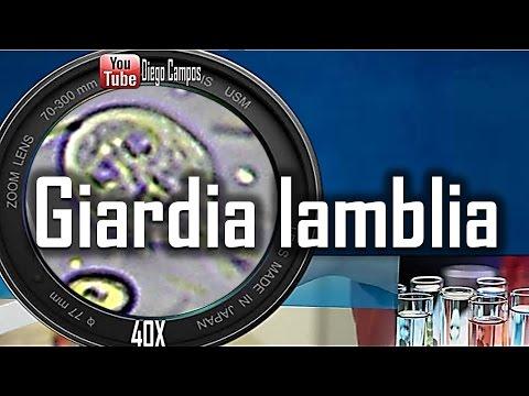 Giardia lamblia (Giardiasis)- Trofozoitos y quistes
