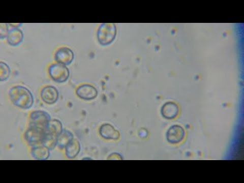 Bacteria movement and fungi from human skin microscope video