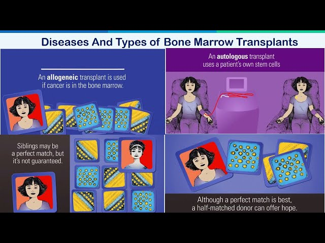 Diseases And Types of Bone Marrow Transplants