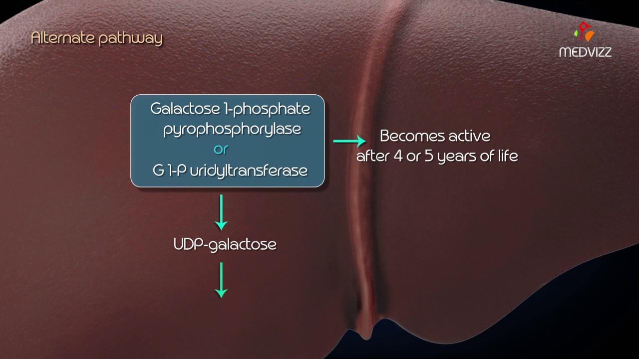 Metabolism of galactose : Classical Galactosemia , Galactokinase deficiency  : USMLE Step 1