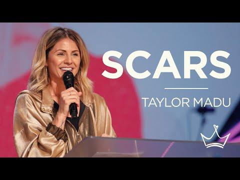 DSN - Taylor Madu - Scars