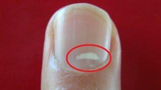 Quelle est la cause de cette tache blanche aux ongles ?