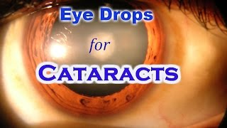 Lanosterol Eye Drops can cure Cataract without Surgery