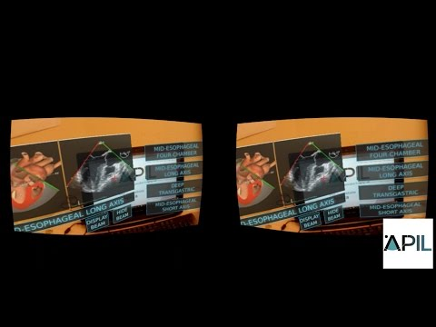 Tech Demo: Augmented Reality HUD for Medical Ultrasound Education