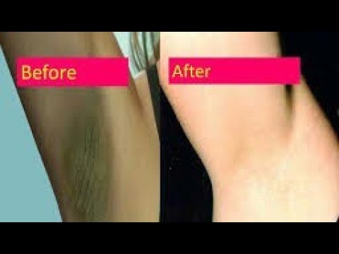 How to lighten your under arms ?? Remove darkness of underarms by Dusky Indian beauty