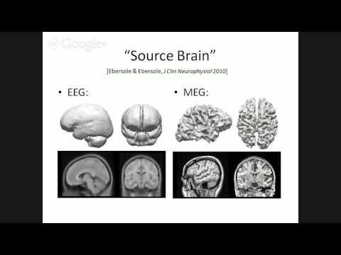 Complementary properties of MEG and EEG - Dr Ahlfors - FNNDSC Talk