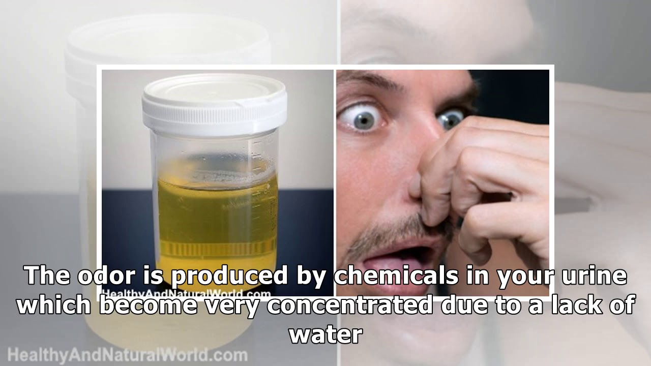 Ammonia Smell in Urine: Causes and What to Do About It ...