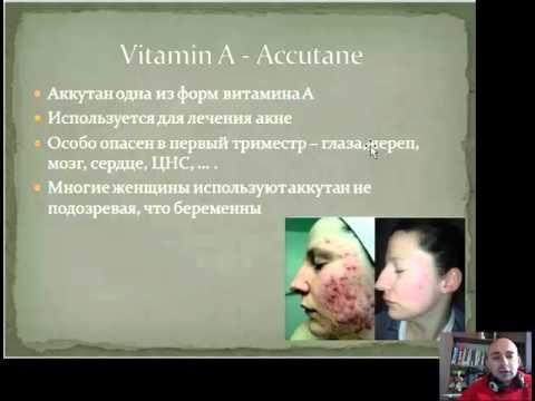 Тератогены. Лекарства во время беременности. Витамин А. Кофеин беседа 2
