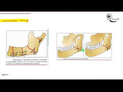 Mandibular Fractures - Part 2 (MANAGEMENT)