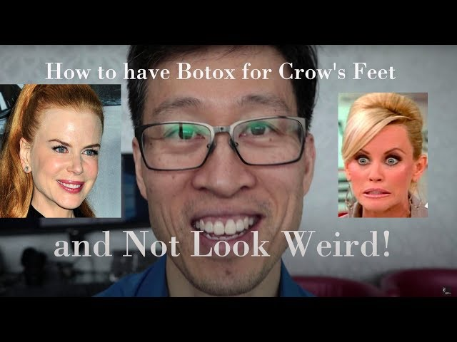 How to have Botox to your Crow's Feet without looking Weird!