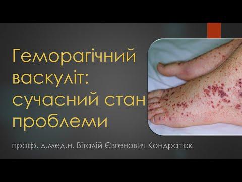 Геморагічний васкуліт: сучасний стан проблеми