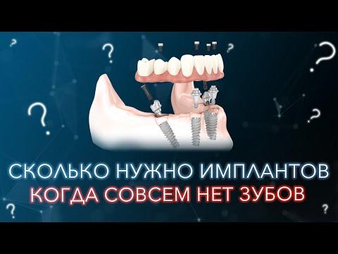 Вообще нет зубов. Сколько нужно имплантов.