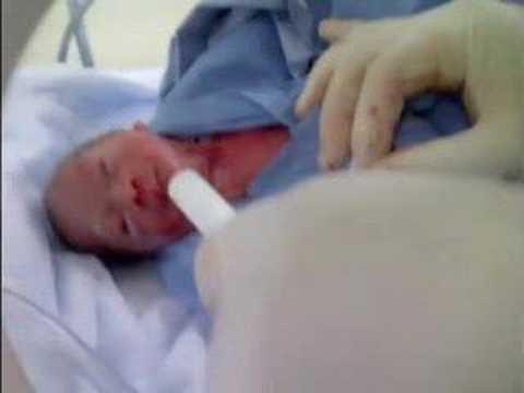 Beb s prematuros la historia de triunfo de alondra victoria youtube - Tos bebe 6 meses ...
