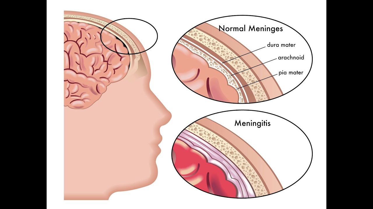 Image result for Meningitis