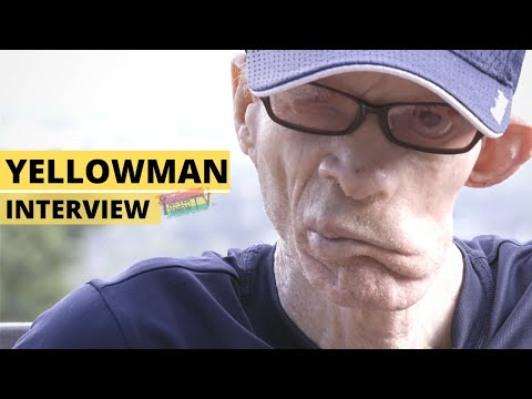 "Yellowman Interview ""From Scorned Orphan to King of Dancehall"" Pt.1"